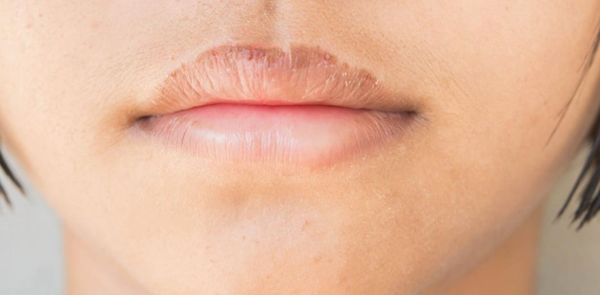How To Cure Dry Lips- Find out the best Natural Remedies to heal them